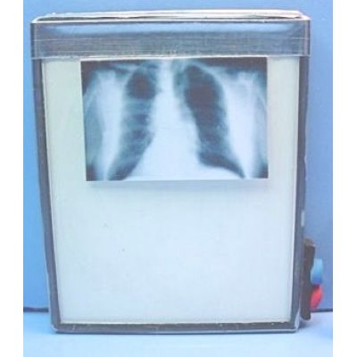 Doctor's Office X-Ray Viewer w/ Chest X-Ray